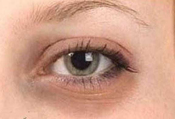 از بین بردن سیاهی دور چشم با مواد طبیعی موثر